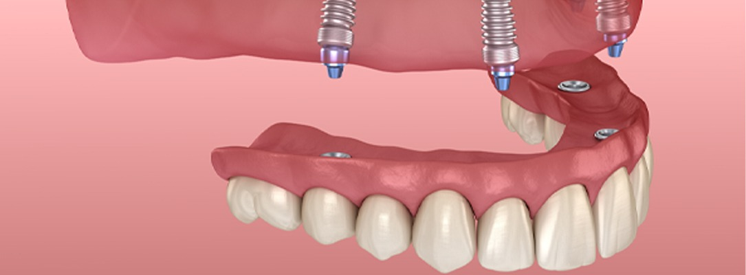 All-on-4 Dental Implants Higham Ferrers, Ashby, Earls Barton and Leicester