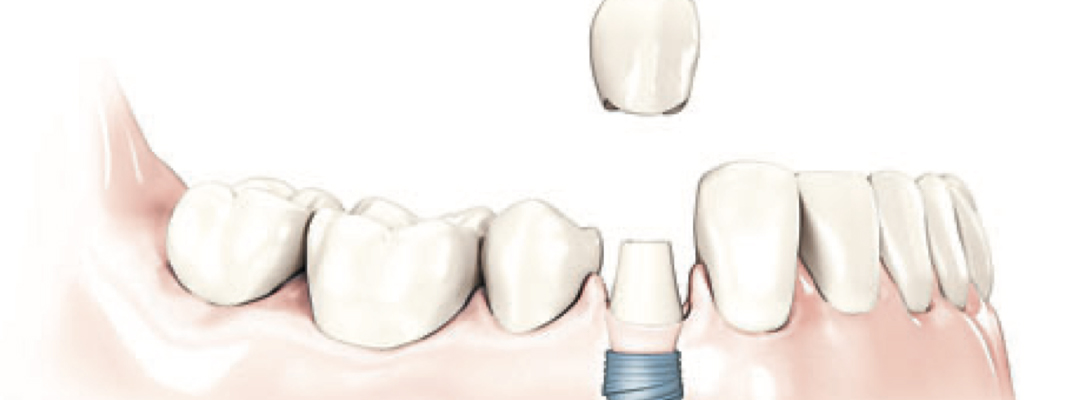 Dental Implants Higham Ferrers, Ashby, Earls Barton and Leicester