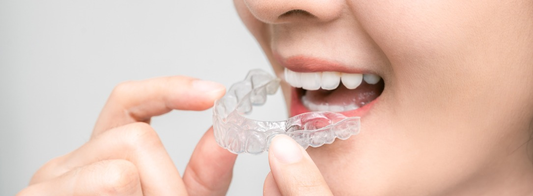 Invisalign Higham Ferrers, Ashby, Earls Barton and Leicester