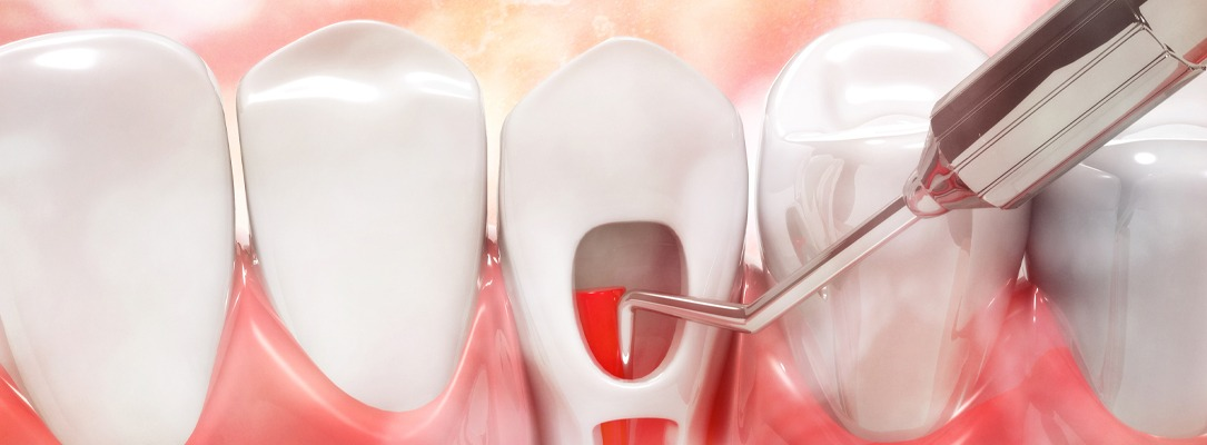 Root Canal Treatment Higham Ferrers, Ashby, Earls Barton and Leicester