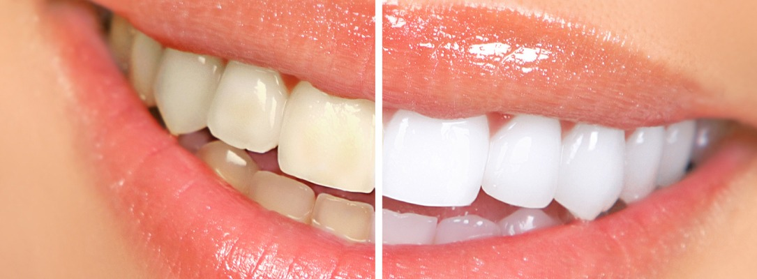 Teeth Whitening Higham Ferrers, Ashby, Earls Barton and Leicester